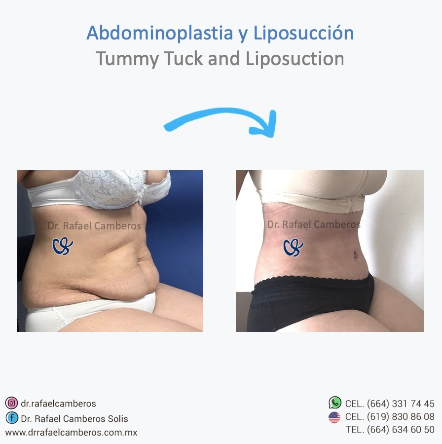 abdominoplastia y liposuccion
