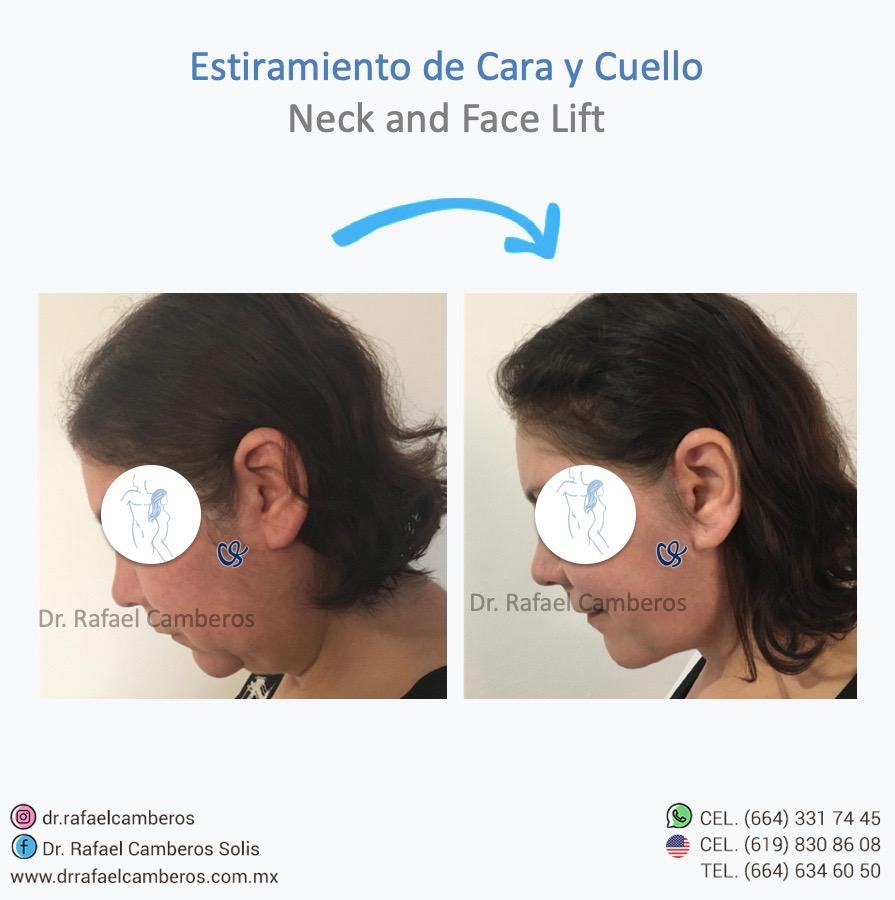 estiramiento de cuello y cara