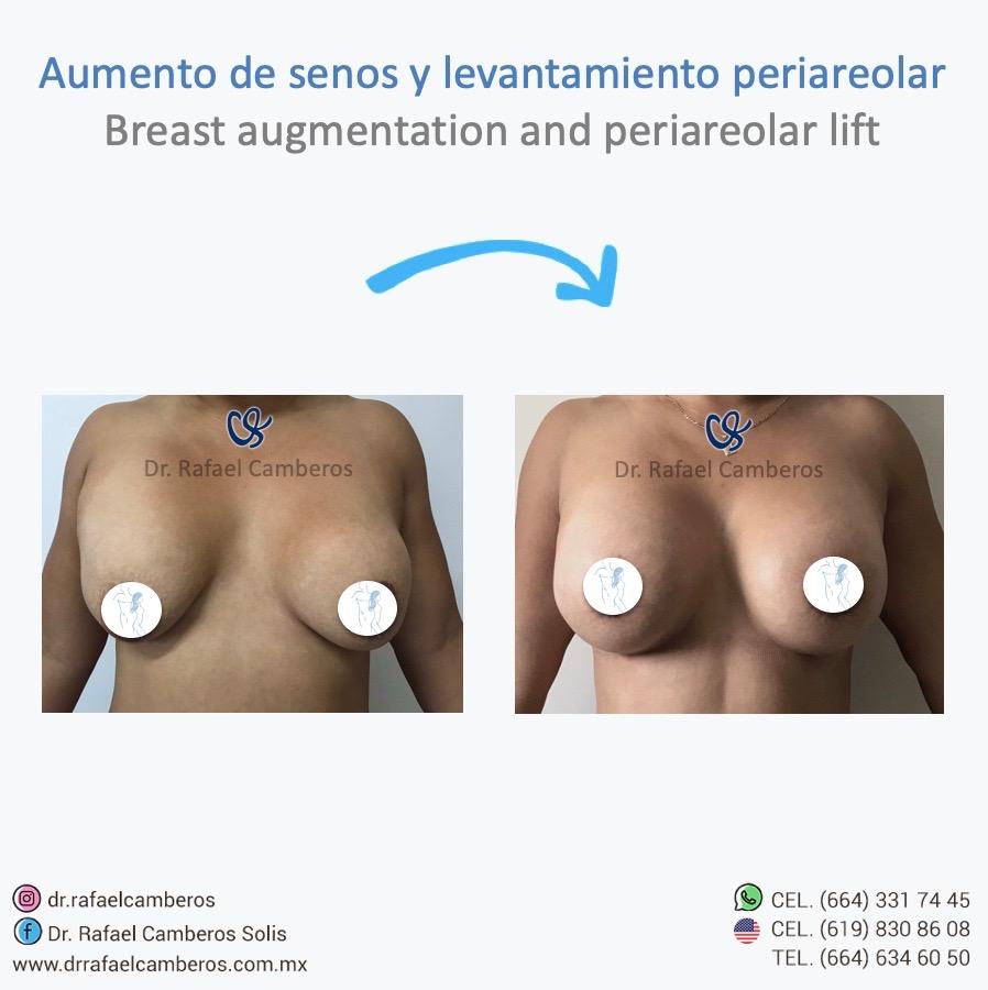 aumento de senos y levantamiento periareolar