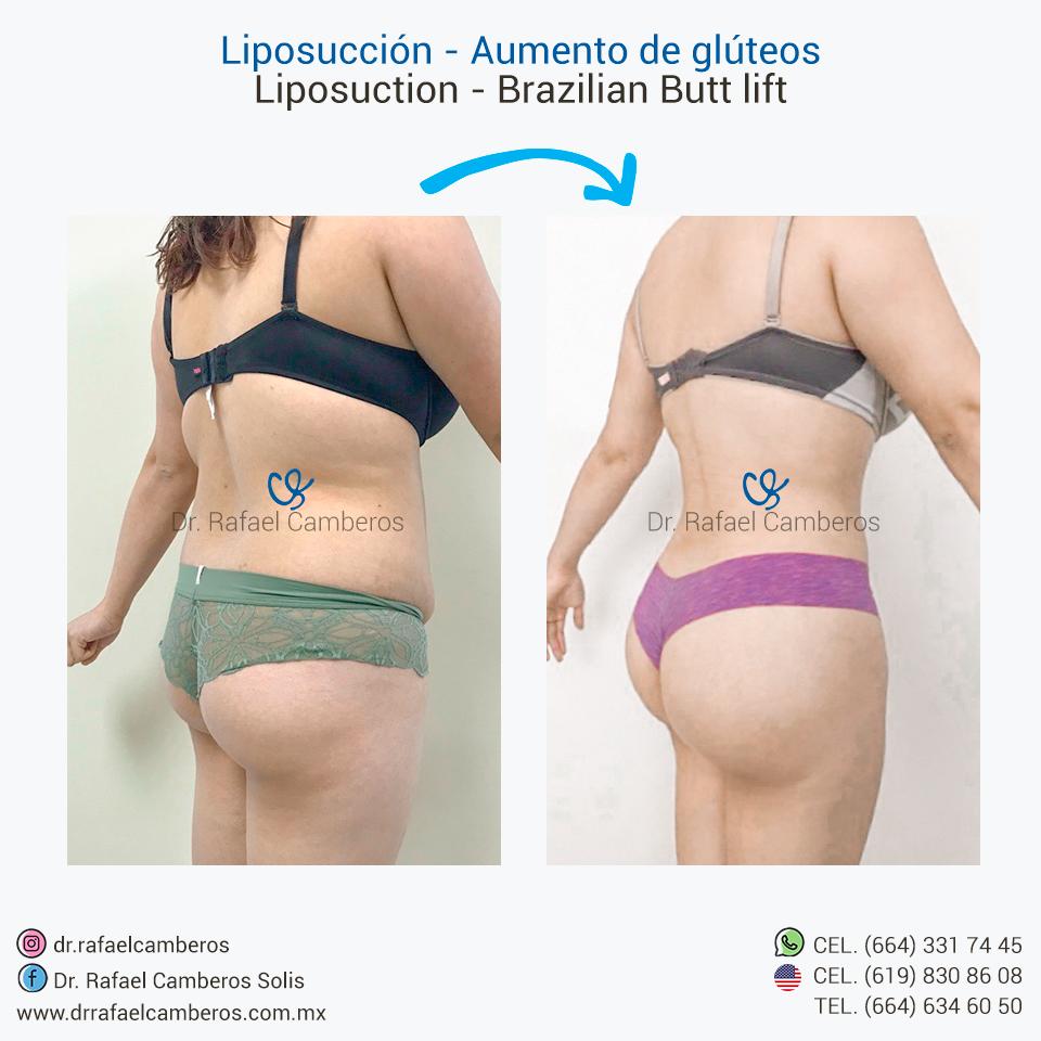Liposuccion - Aumento de gluteos