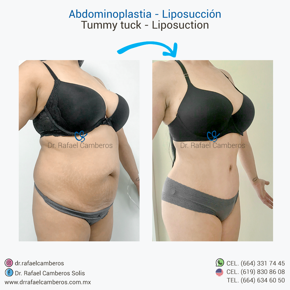 Abdominoplastia - Liposuccion