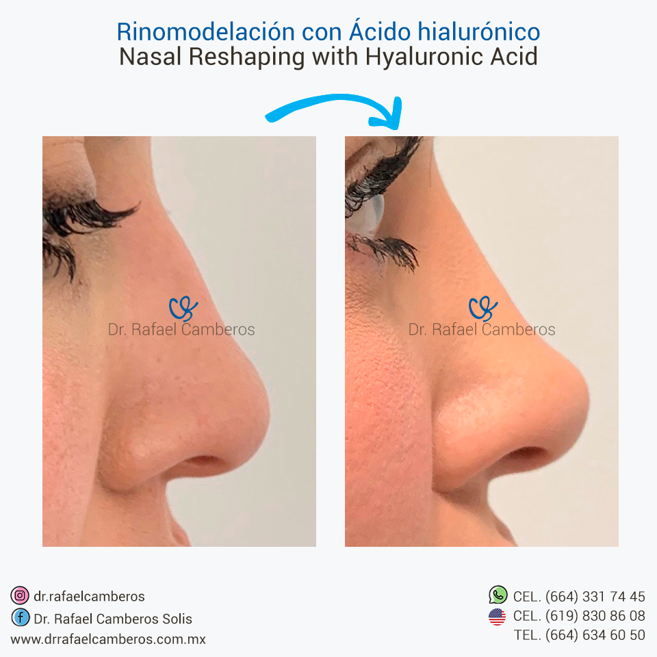 Rinomodelacion con acido hialuronico