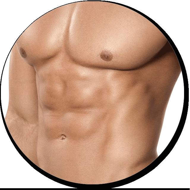 Abdominoplastia con liposucción masculina