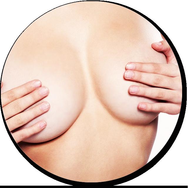 aumento de mamas