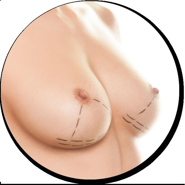 levantamiento mamas