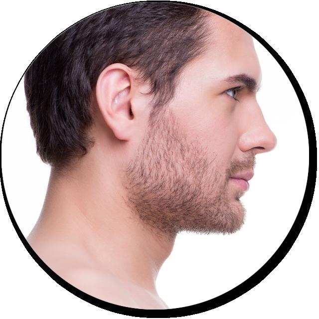 Liposucción de papada masculina